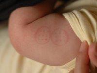 ハンコ注射の跡